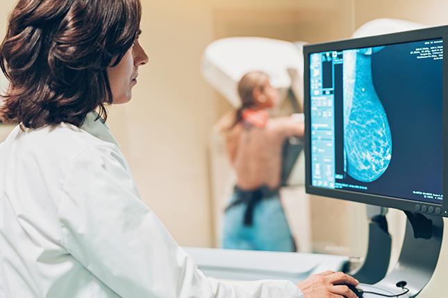 Por miedo al coronavirus, entre un 40% y un 70% de mujeres no se hicieron la mamografía anual